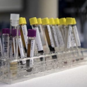 examene biochimice din sange