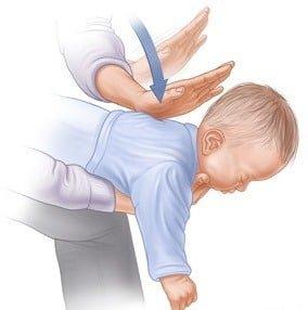 dezobstrucție căi aeriene sugar pagina de nursing