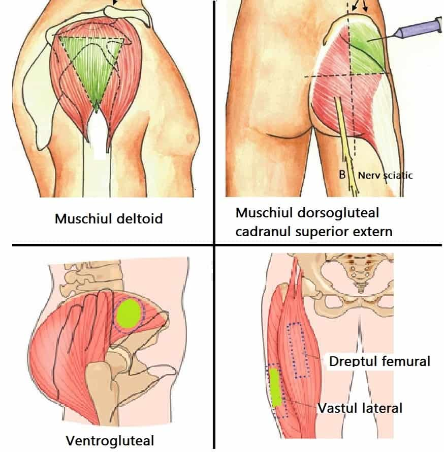 locuri de electie injectia intramusculara pagina de nursing