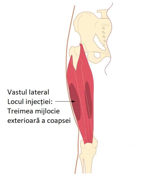 injectia intramsculara treimea mijlocie exterioara a coapsei