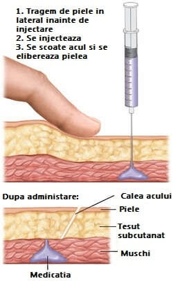 injectia intramusculara in z pagina de nursing