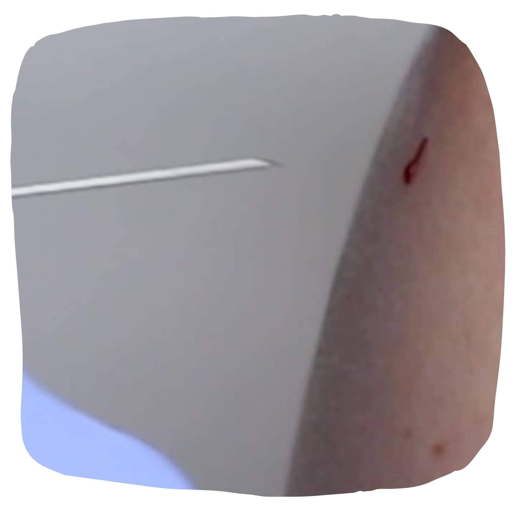 injectia intramusculara pagina de nursing retrage acul