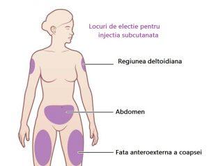 locuri electie injectia subcutanata pagina de nursing