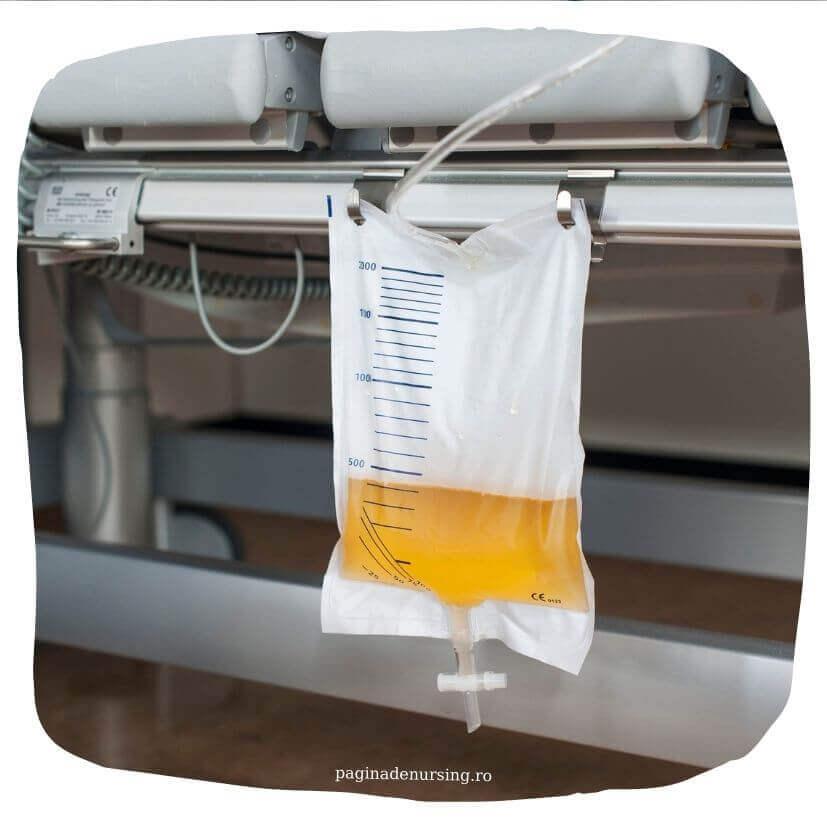 recoltarea probelor de urina pe sonda urinara a demeure paginadenursing
