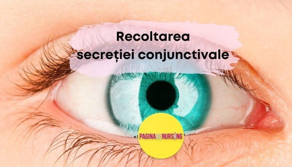 recoltarea secretiei conjunctivale pagina de nursing