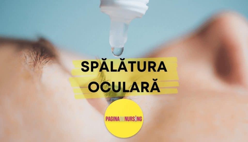 spalatura oculara paginadenursing amg tehnica asistenti