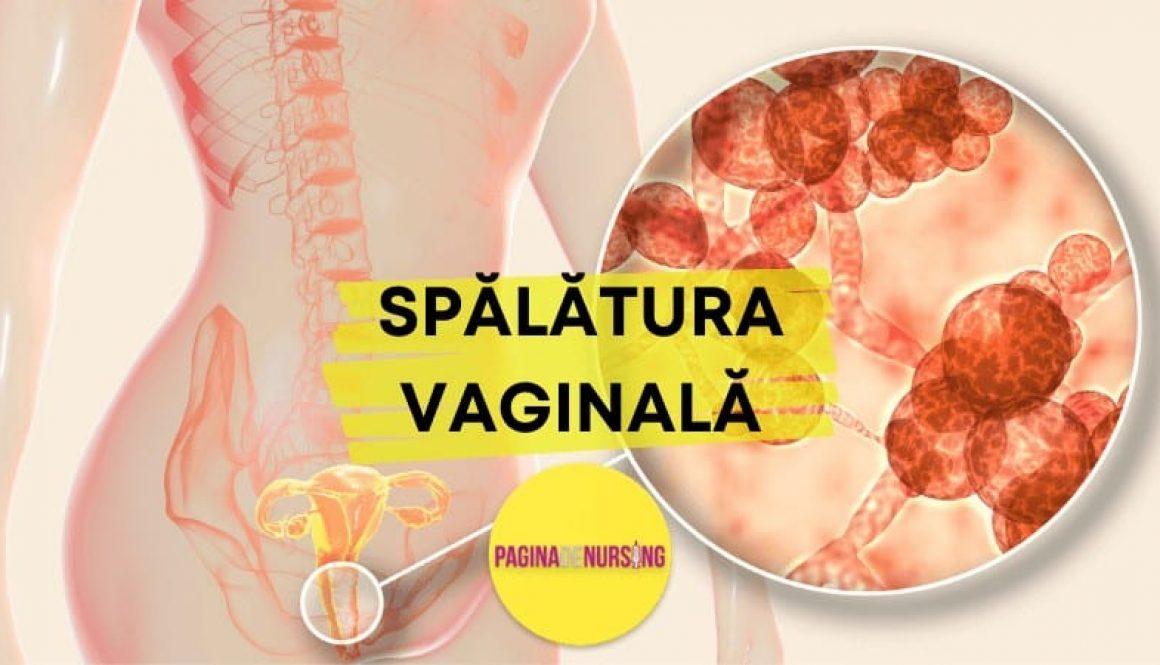 spalatura vaginala paginadenursing amg tehnica asistenti