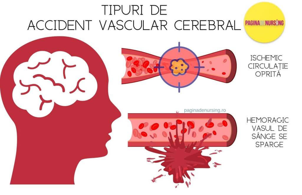 tipuri de accident vascular cerebral paginadenursing