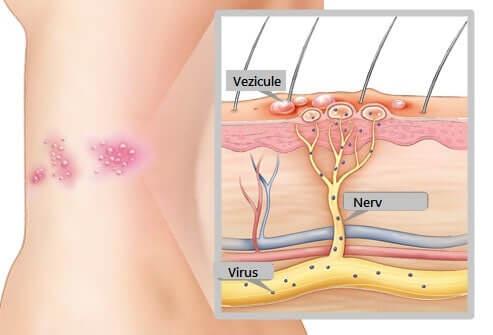 varicela zona zoster pagina de nursing