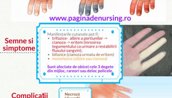 boala raynaud