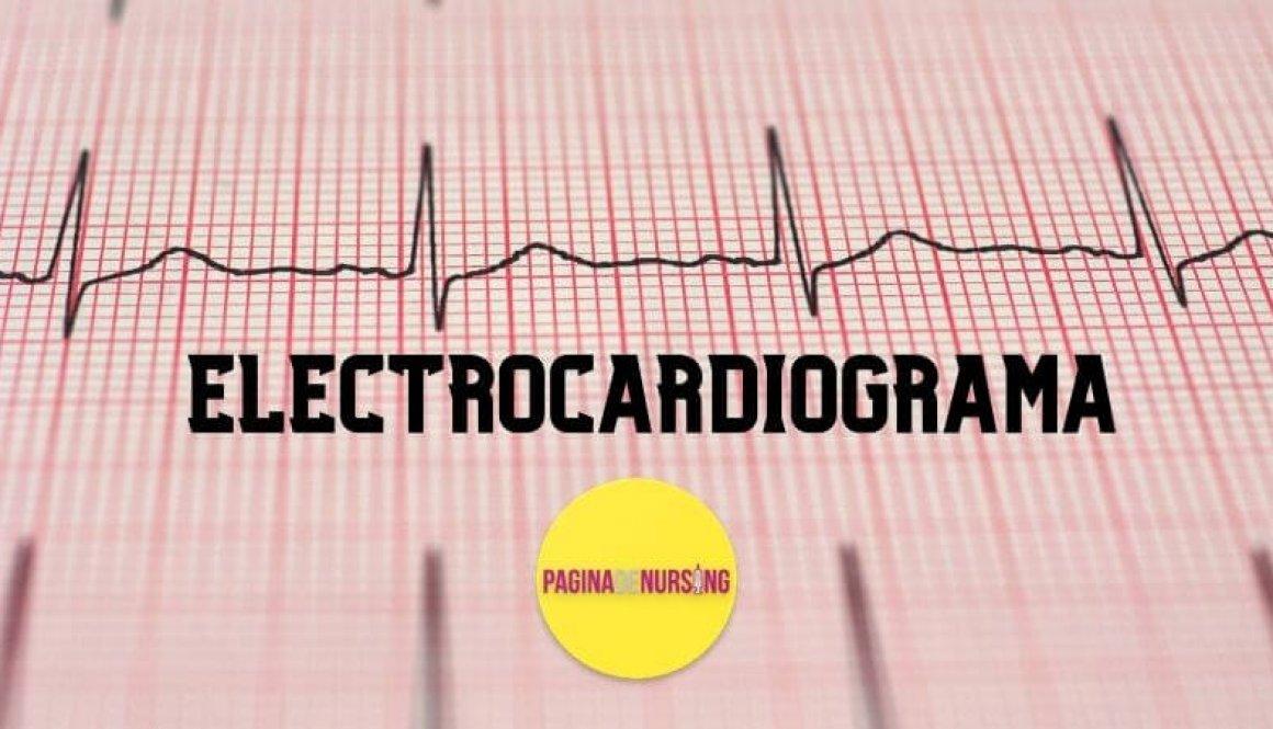 ELECTROCARDIOGRAMA ECG EKG pagina de nursing tehnica pozitionare electrozi