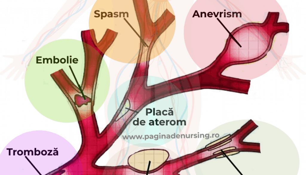 arteriopatii