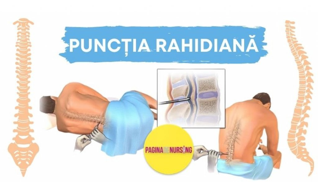 puncția rahidiana lombara paginadenursing amg tehnici asistenti medicali