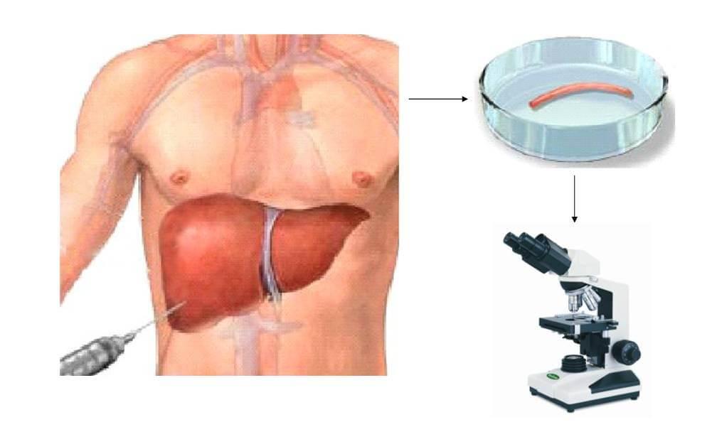 puncția hepatică
