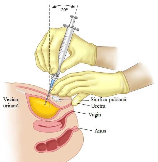 punctia vezicii urinare punctie suprapubiana paginadenursing
