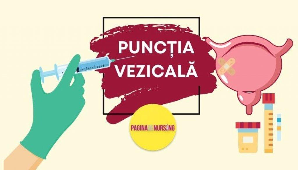 punctia vezicii urinare vezicala pagina de nursing tehnici amg