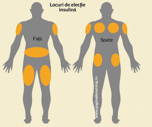 locuri electie insulina pagina de nursing