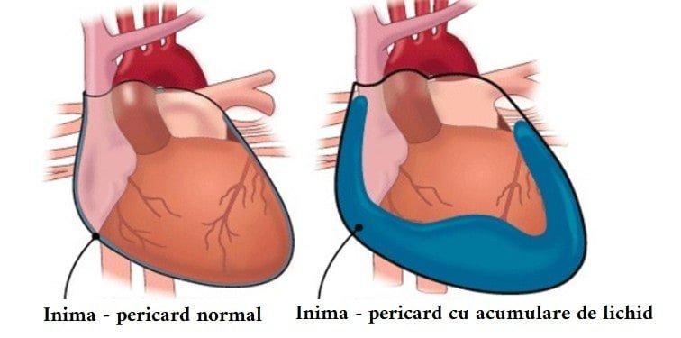inima pericard cu acumulare