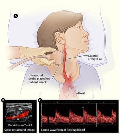 ecorafie doppler carotide
