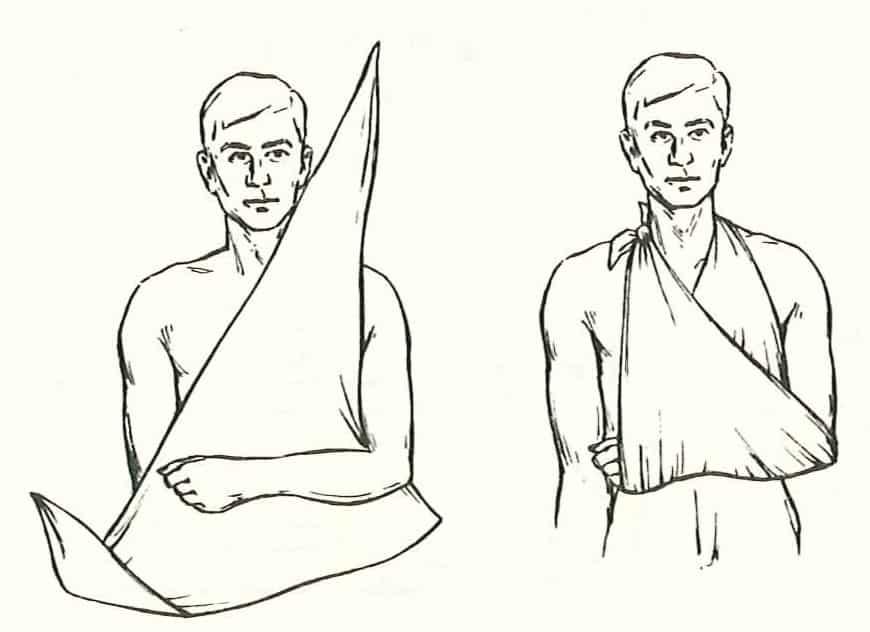 panza triunghiulara bandaj