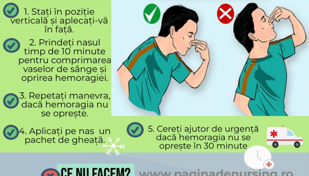 epistaxis pagina de nursing