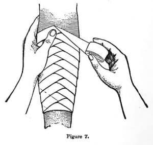 bandaj spirala