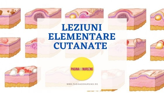LEZIUNI ELEMENTARE CUTANATE