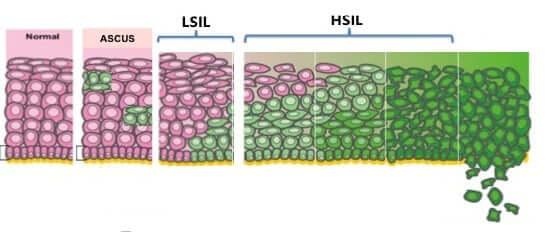 celule anormale papanicolau