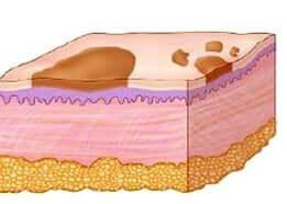 leziuni discromice macula pata pagina de nursing