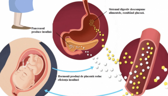 diabetul gestational pagina de nursing
