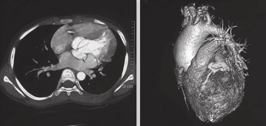 rmn cardiac