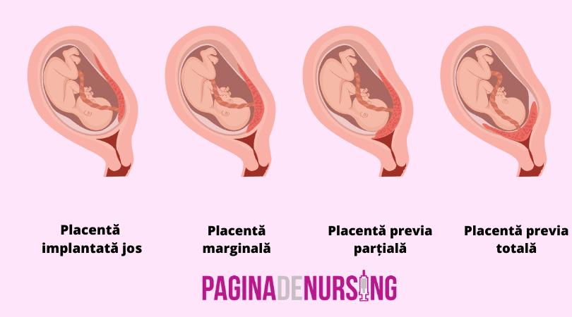 tipuri de placenta previa pagina de nursing