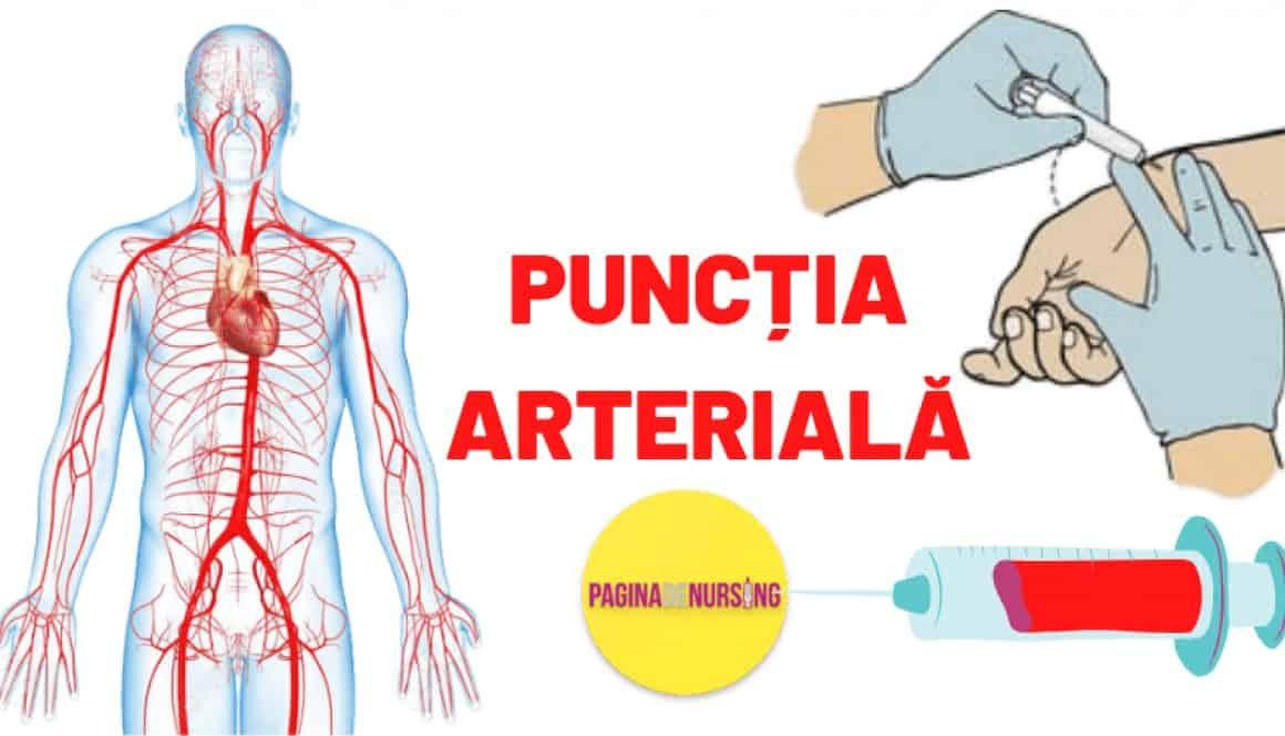 PUNCTIA ARTERIALA pagina de nursing tehnica amg