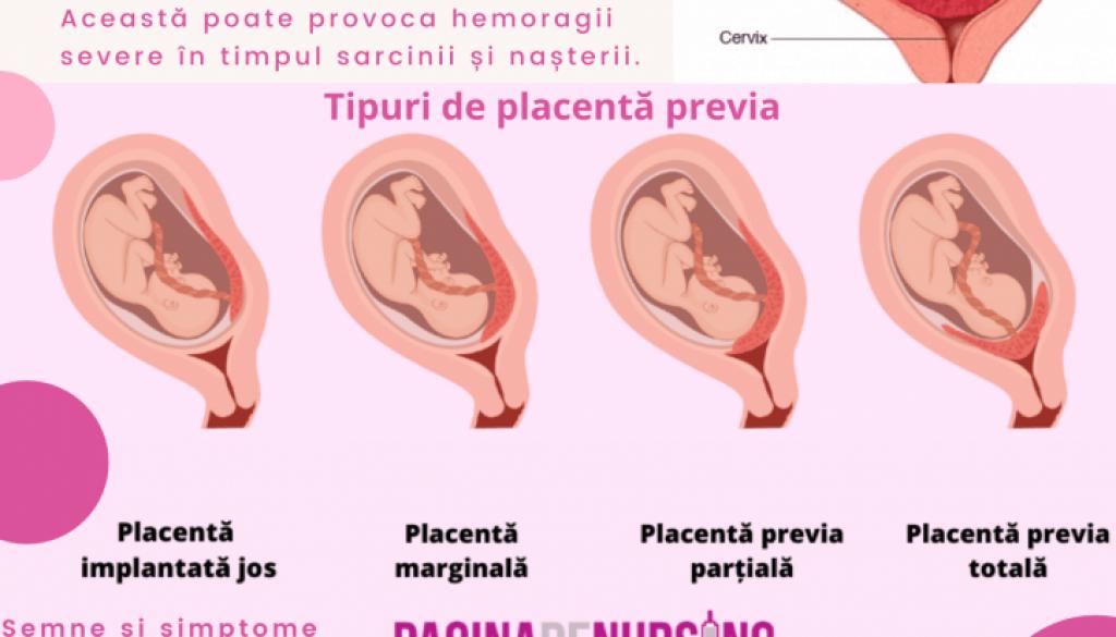 placenta previa pagina de nursing