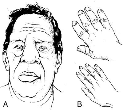 acromegalia pagina de nursing semiologie amg