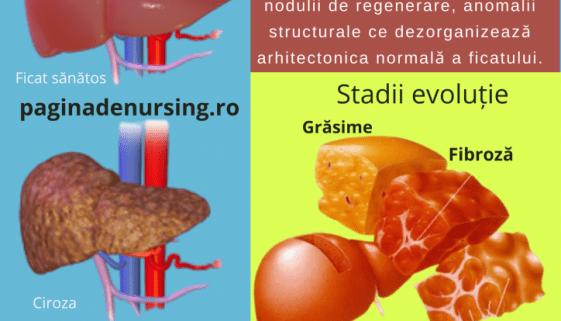 ciroza hepatica pagina de nursing
