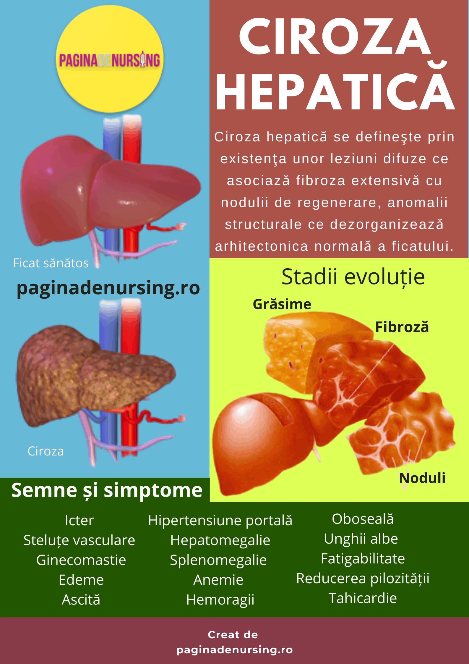 tratament ciroza hepatica