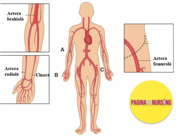 locuri electie punctia arteriala pagina de nursing amg