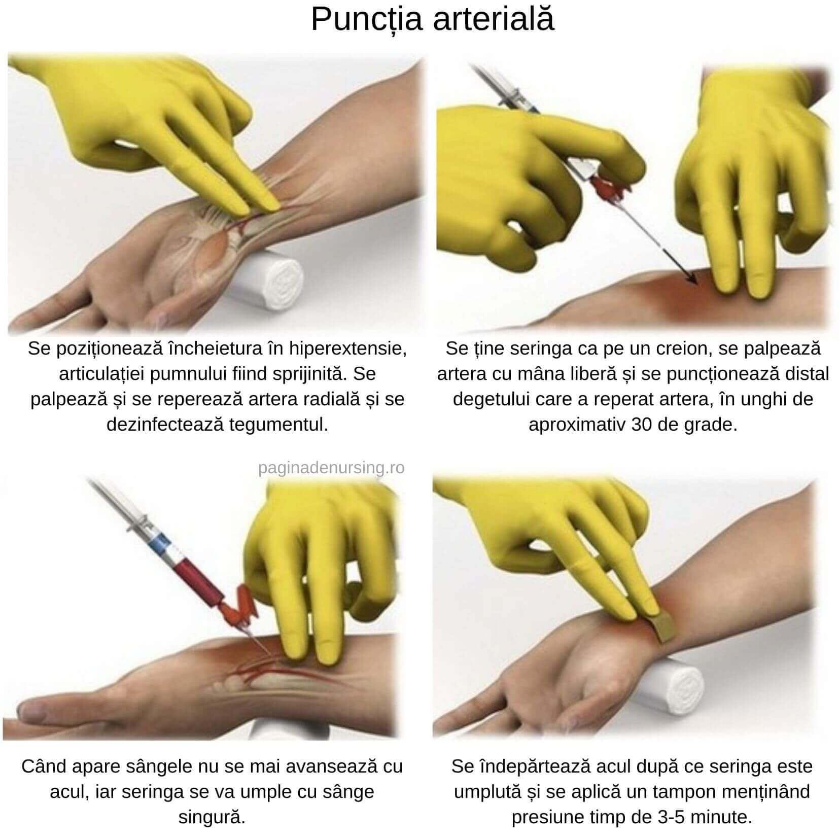 punctia arteriala tehnica pasi paginadenursing