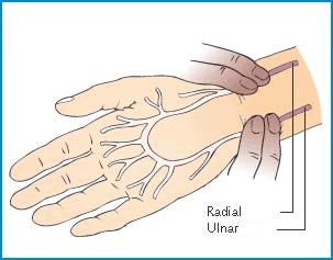 artera radiala si ulnara testul allen pagina de nursing