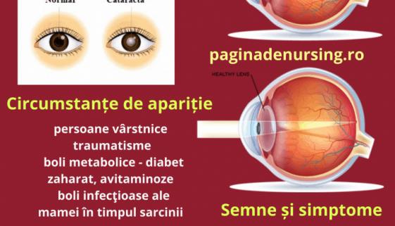 cataracta pagina de nursing