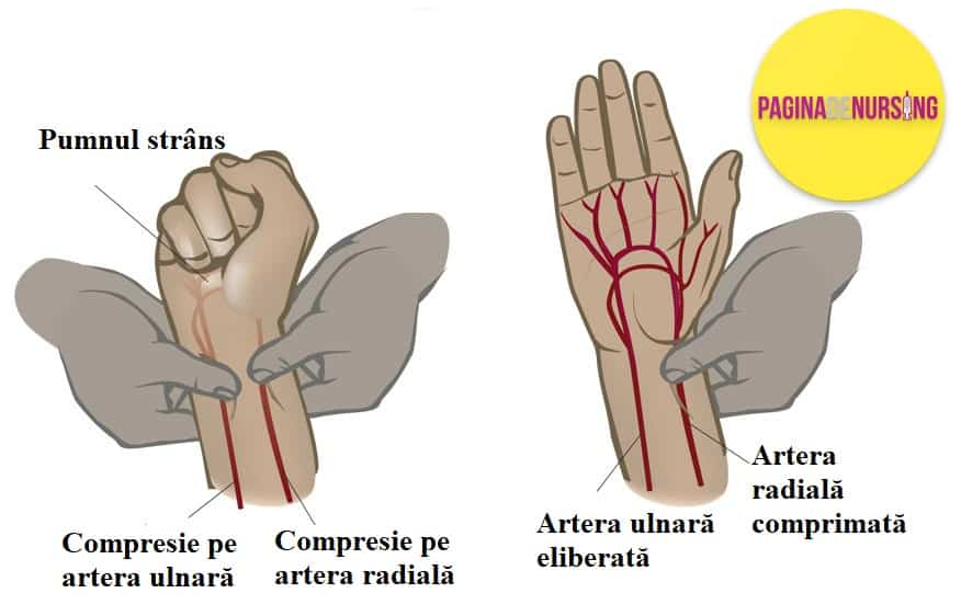 testul allen punctia arteriala