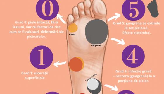 diabetul zaharat picior diabetic pagina de nursing