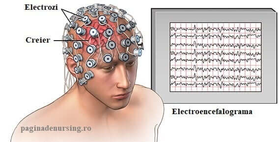 electroencefalograma eeg paginadenursing amg