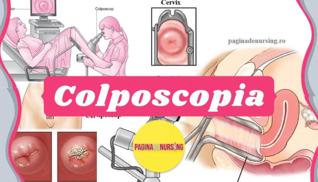 colposcopia paginadenursing