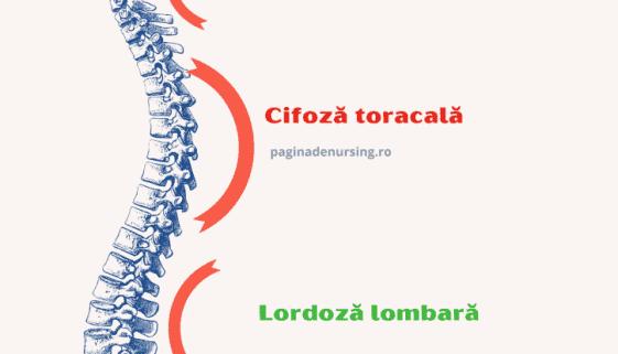 curburile coloanei vertebrale paginadenursing