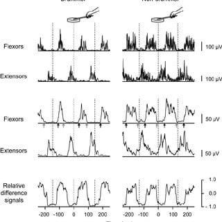 semnale electromiografie