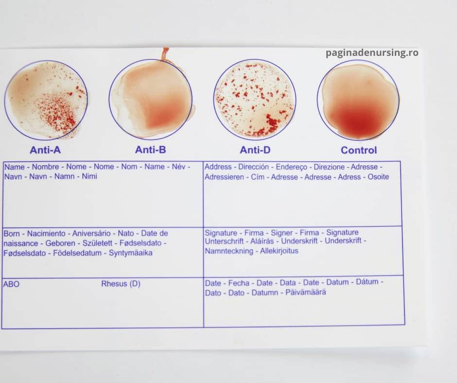 grupa de sange test paginadenursing