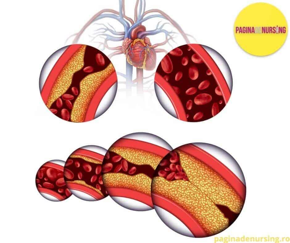 TRIGLICERIDELE pagina de nursing ateroscleroza