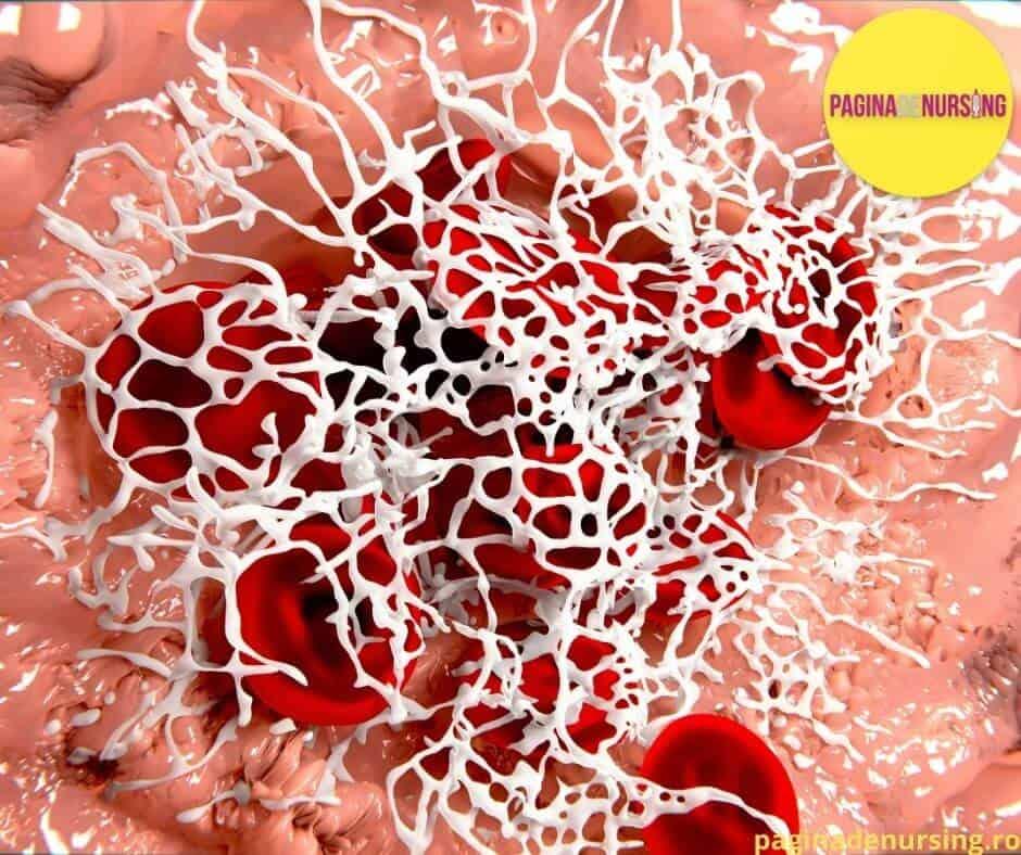 hemostaza fibrina pagina de nursing amg